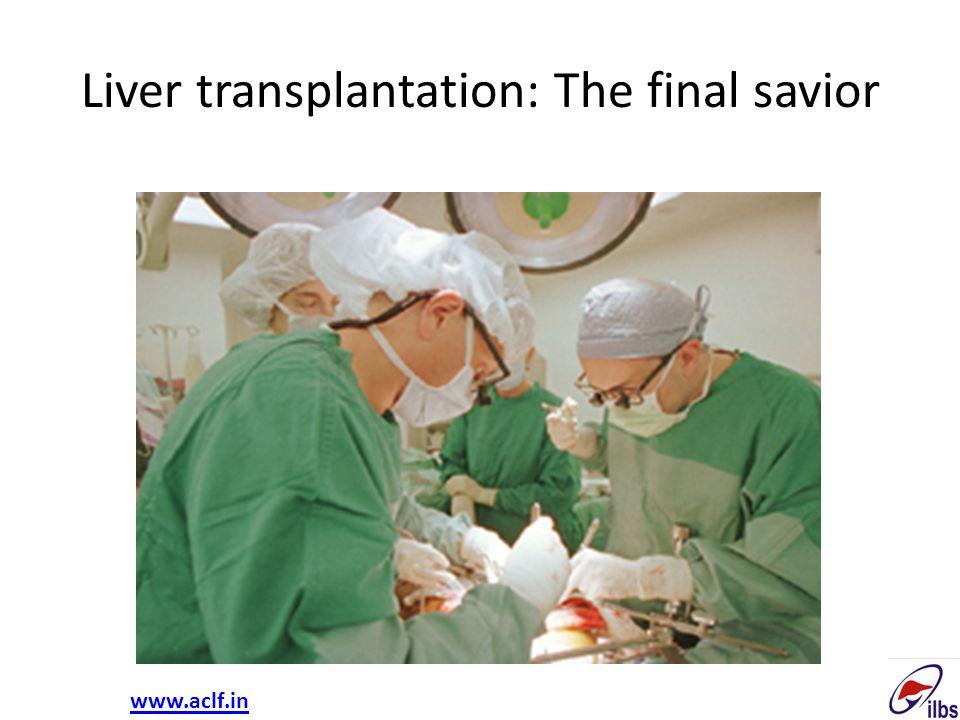 Liver transplantation: The final savior