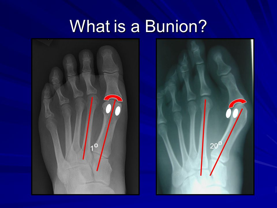 What is a Bunion 20o 1o
