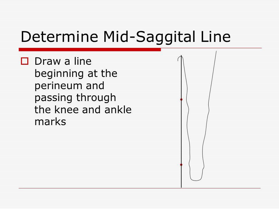 Determine Mid-Saggital Line