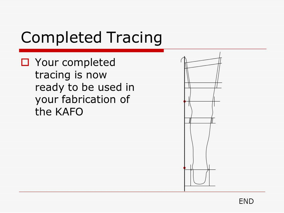 Completed Tracing Your completed tracing is now ready to be used in your fabrication of the KAFO.