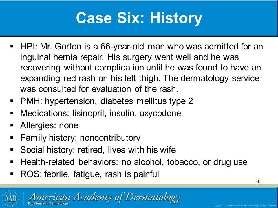 Case Six: History