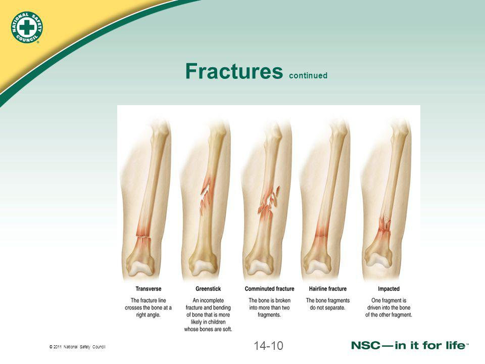 Fractures continued