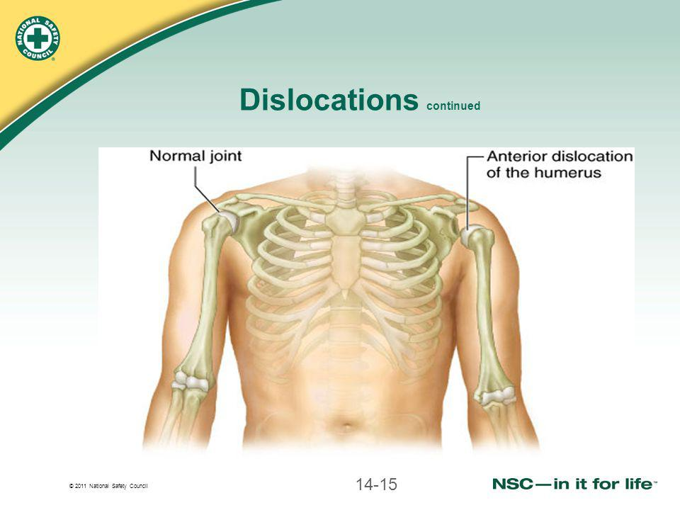 Dislocations continued