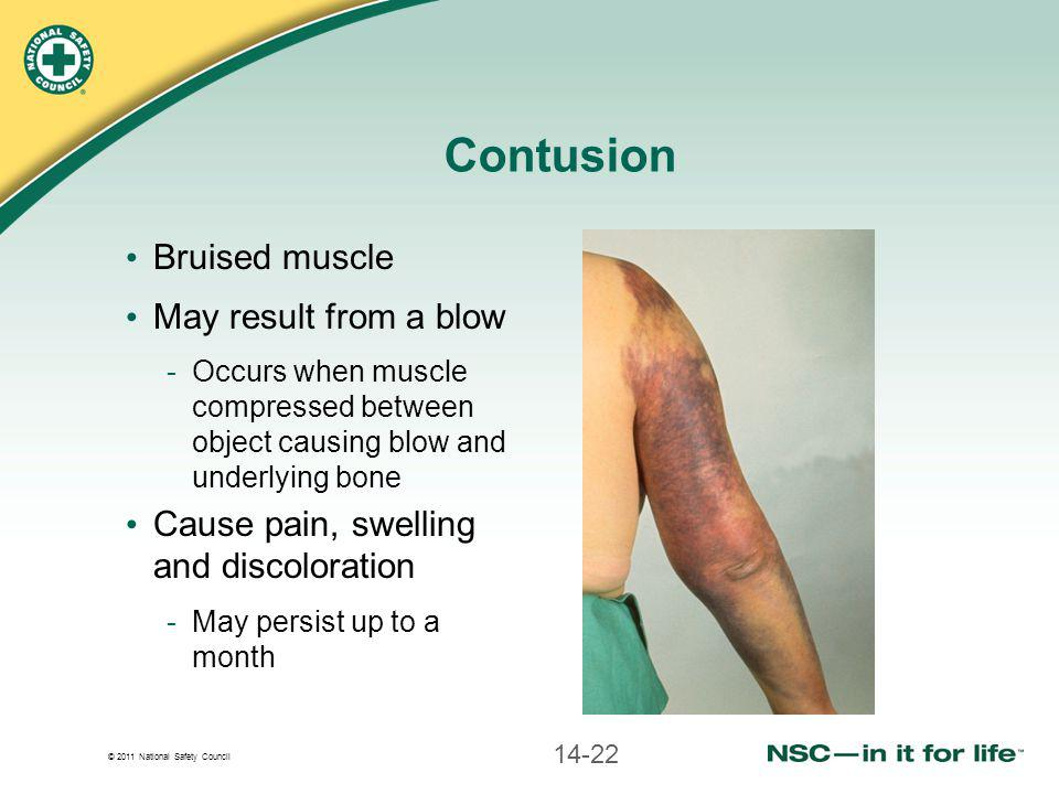 Contusion Bruised muscle May result from a blow
