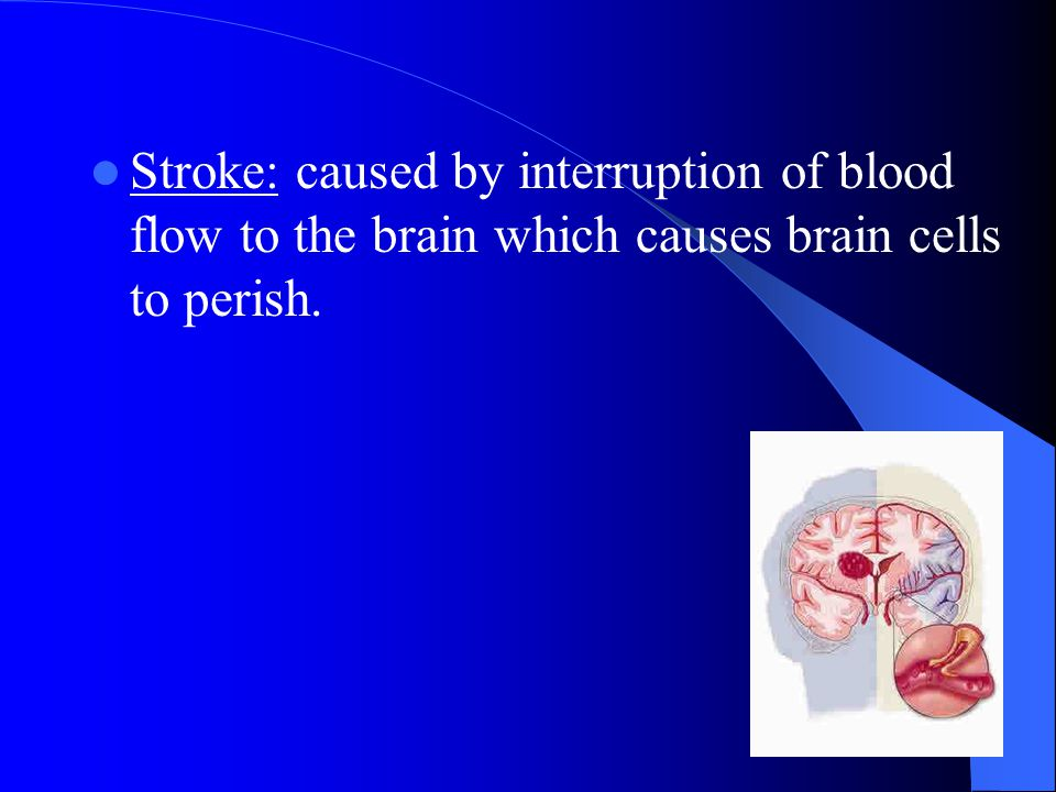 Stroke: caused by interruption of blood flow to the brain which causes brain cells to perish.