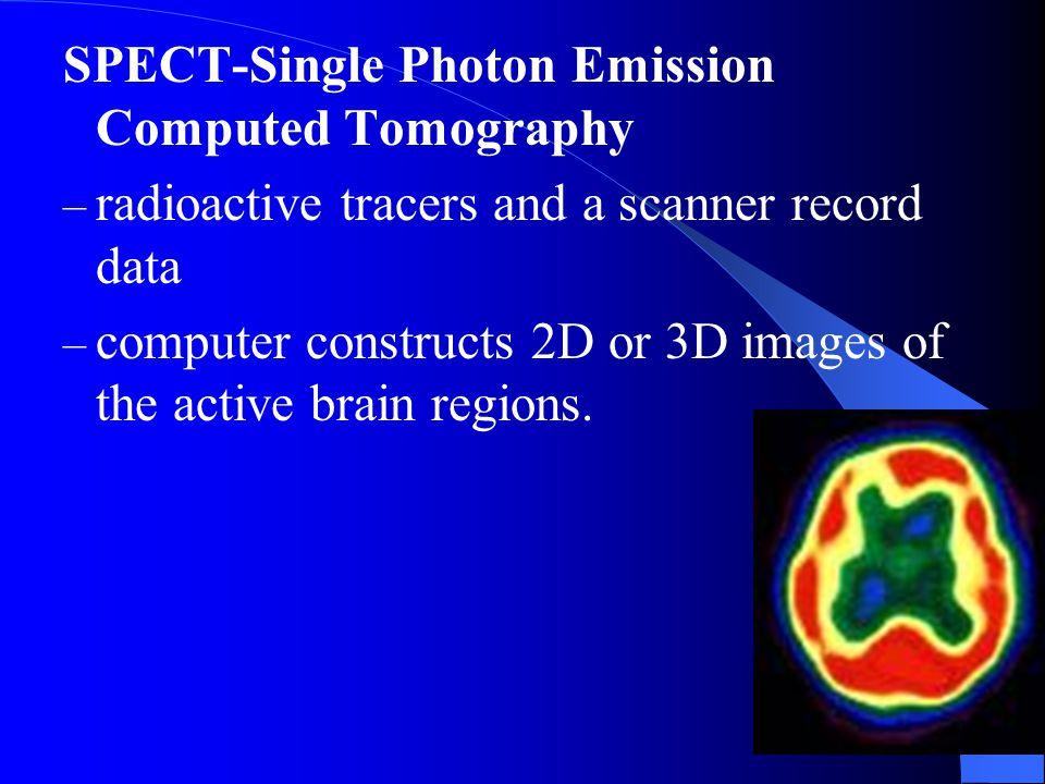 SPECT-Single Photon Emission Computed Tomography