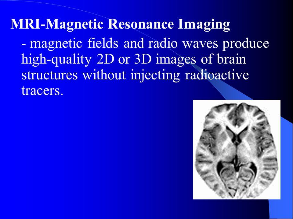 MRI-Magnetic Resonance Imaging