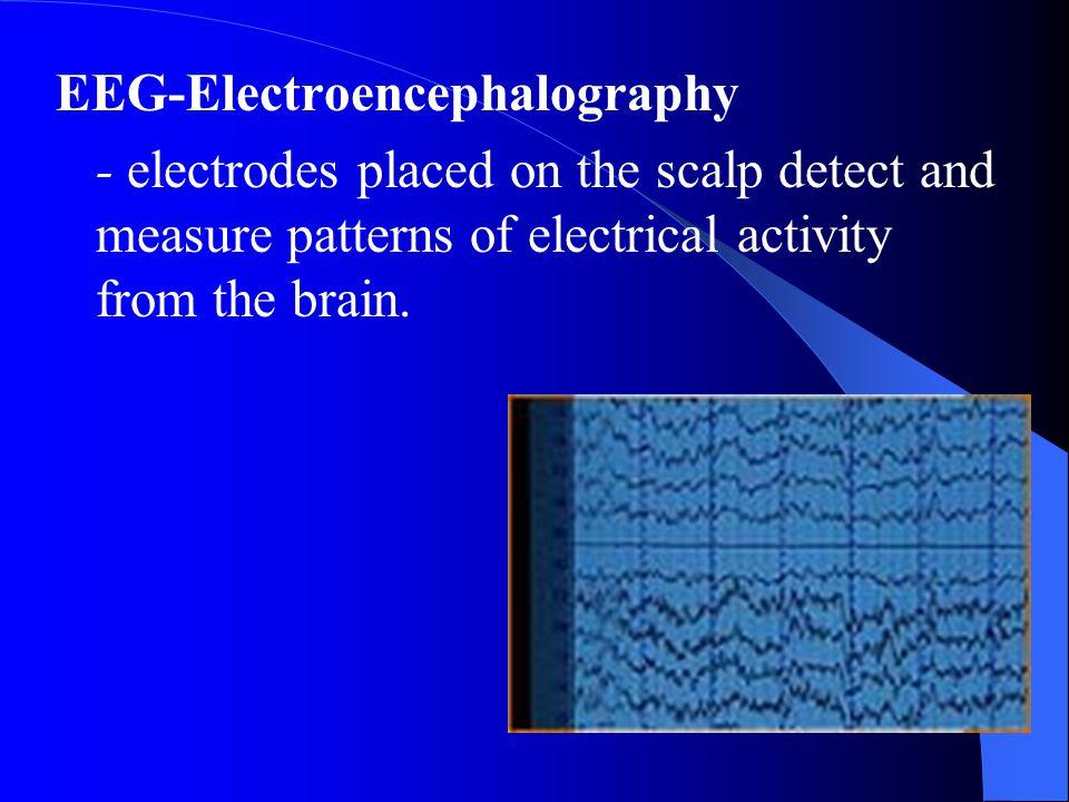 EEG-Electroencephalography