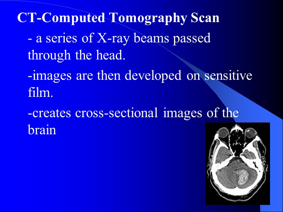 CT-Computed Tomography Scan