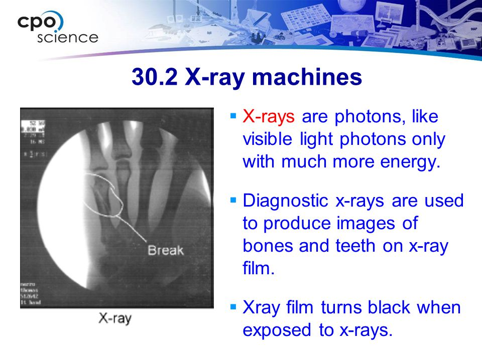 30.2 X-ray machines X-rays are photons, like visible light photons only with much more energy.