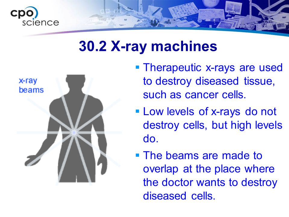 30.2 X-ray machines Therapeutic x-rays are used to destroy diseased tissue, such as cancer cells.