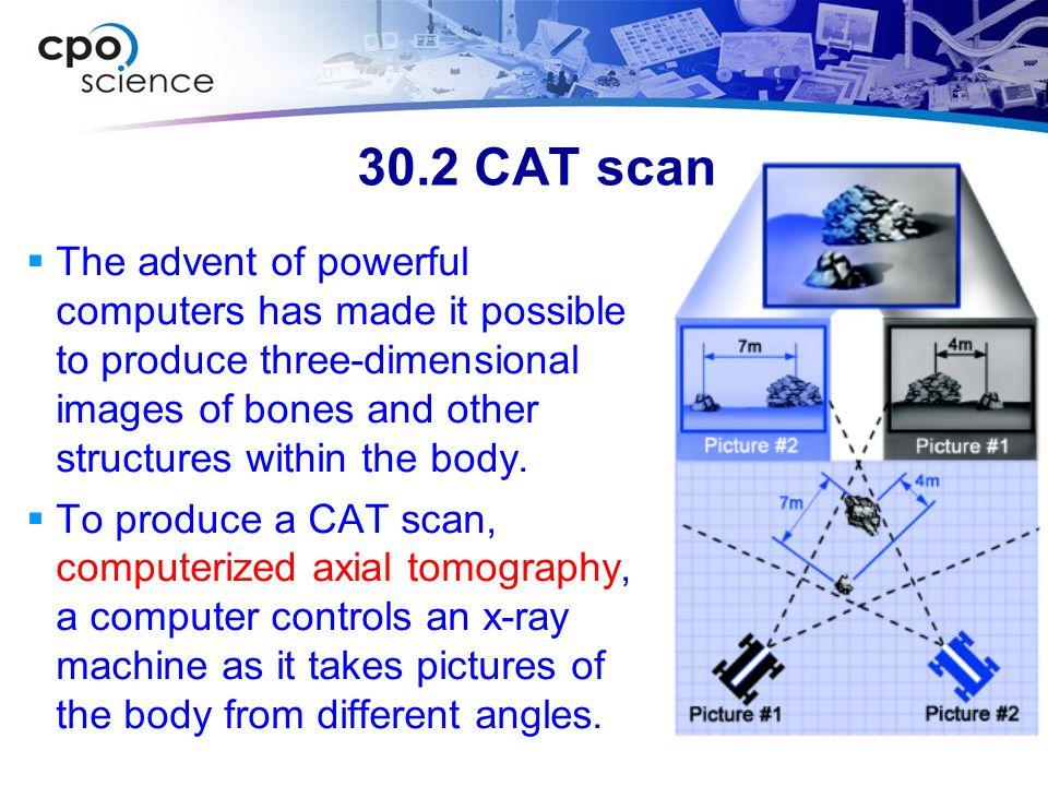 30.2 CAT scan