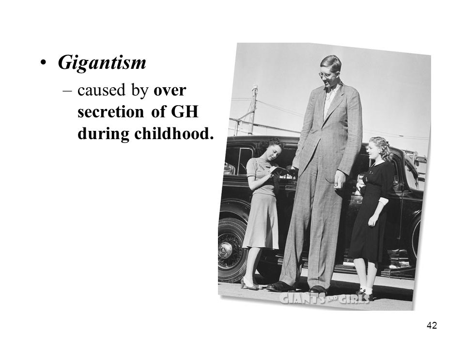 Gigantism caused by over secretion of GH during childhood.