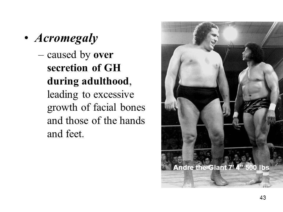 Acromegaly caused by over secretion of GH during adulthood, leading to excessive growth of facial bones and those of the hands and feet.