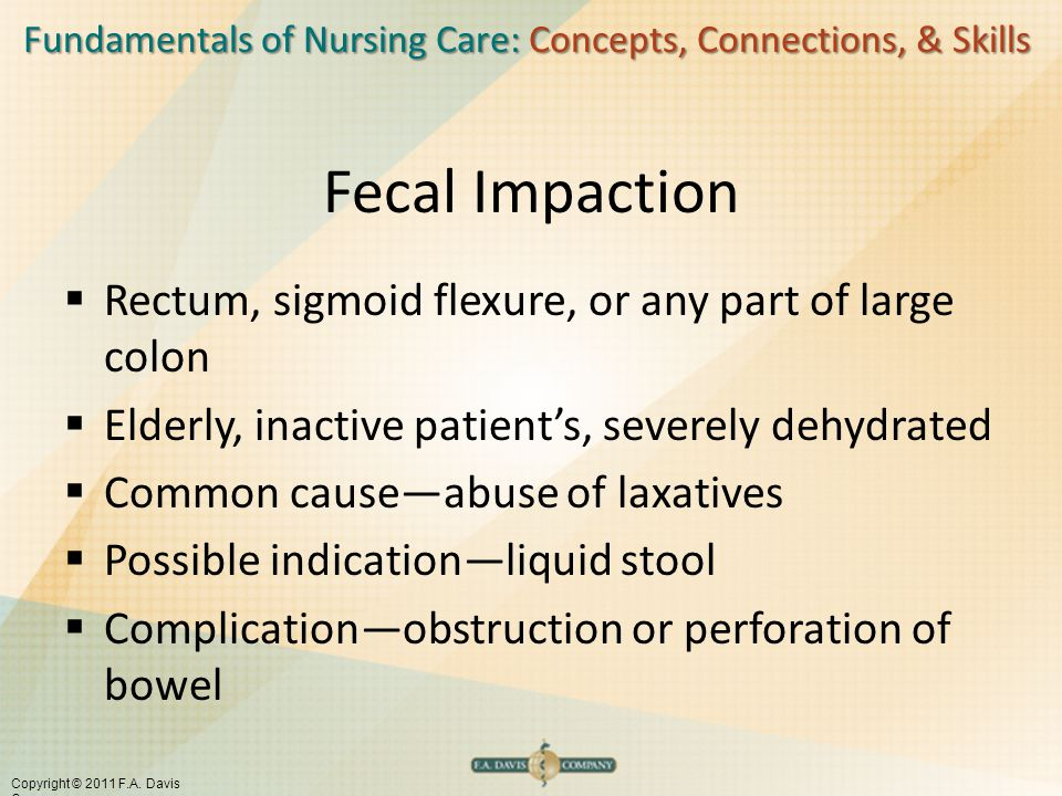 Fecal Impaction Rectum, sigmoid flexure, or any part of large colon
