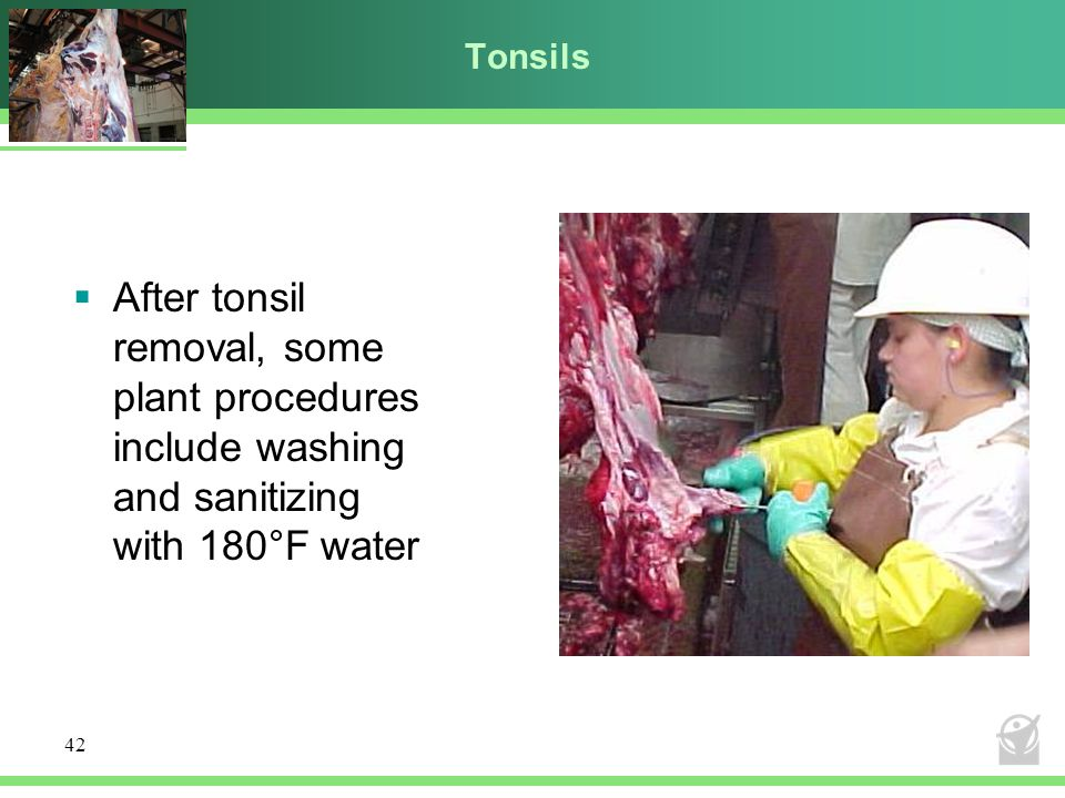 Tonsils After tonsil removal, some plant procedures include washing and sanitizing with 180°F water.