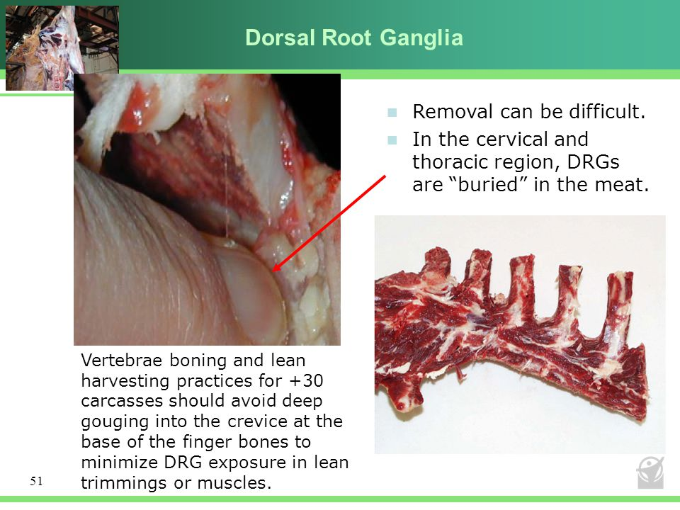 Dorsal Root Ganglia Removal can be difficult.