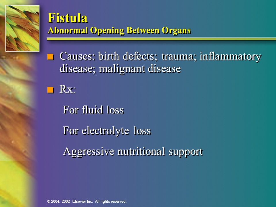 Fistula Abnormal Opening Between Organs