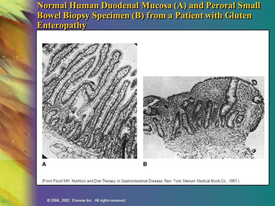 Normal Human Duodenal Mucosa (A) and Peroral Small Bowel Biopsy Specimen (B) from a Patient with Gluten Enteropathy