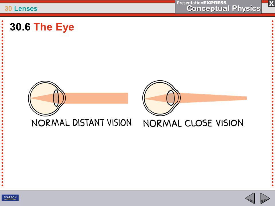 30.6 The Eye