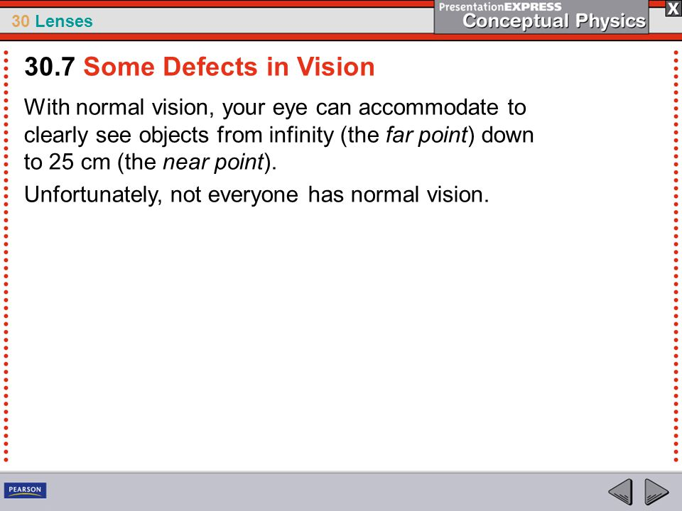 30.7 Some Defects in Vision