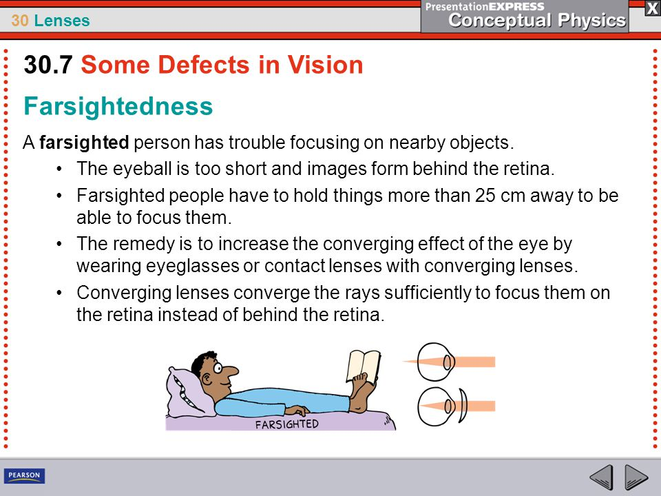 30.7 Some Defects in Vision Farsightedness