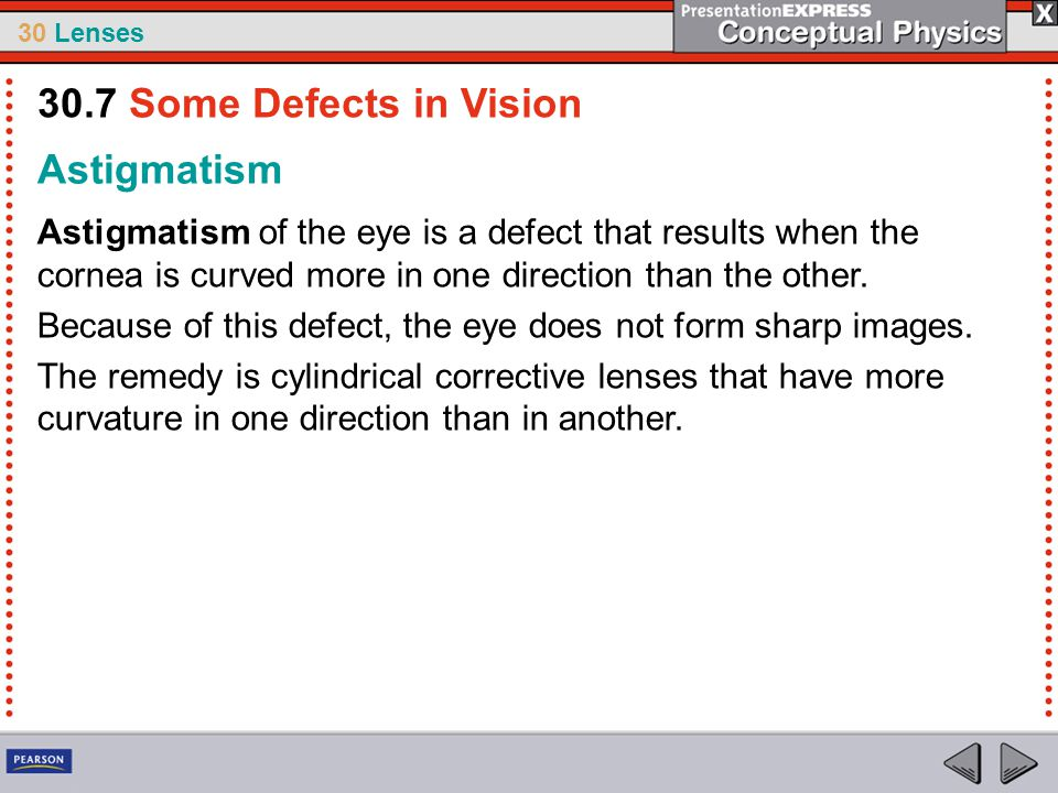 30.7 Some Defects in Vision Astigmatism