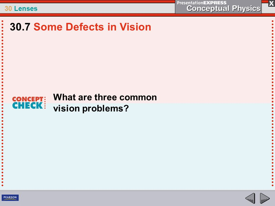 30.7 Some Defects in Vision What are three common vision problems