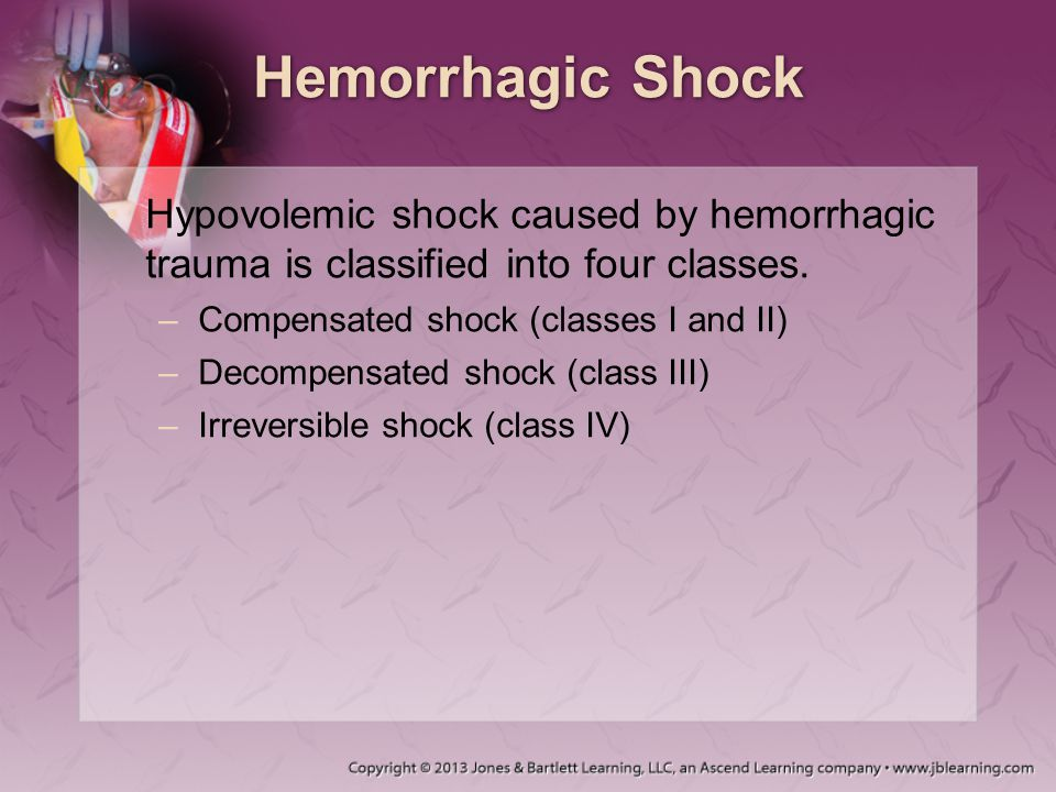 Hemorrhagic Shock Hypovolemic shock caused by hemorrhagic trauma is classified into four classes. Compensated shock (classes I and II)