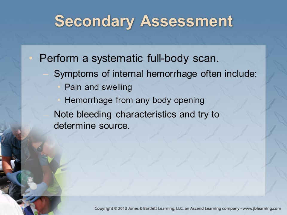 Secondary Assessment Perform a systematic full-body scan.