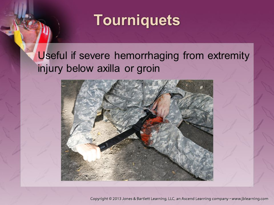 Tourniquets Useful if severe hemorrhaging from extremity injury below axilla or groin