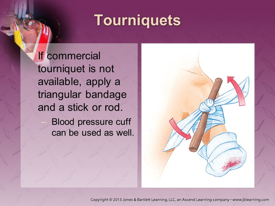 Tourniquets If commercial tourniquet is not available, apply a triangular bandage and a stick or rod.