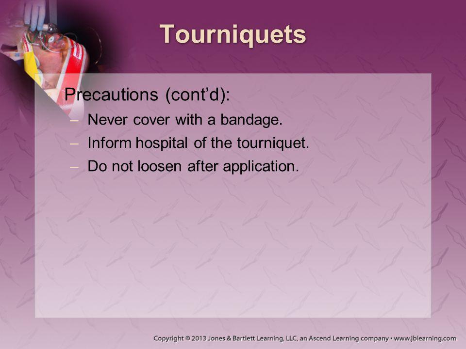 Tourniquets Precautions (cont'd): Never cover with a bandage.