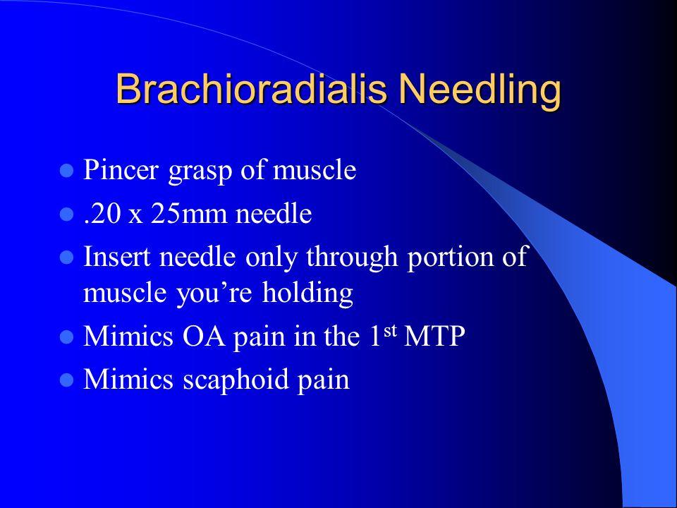 Brachioradialis Needling