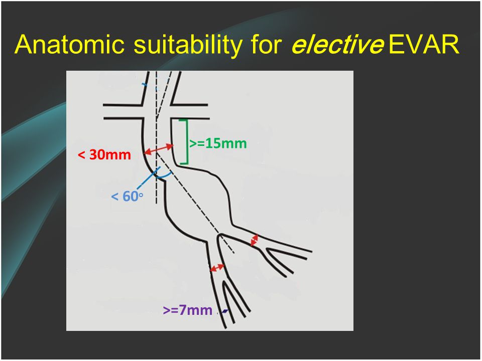 Anatomic suitability for elective EVAR