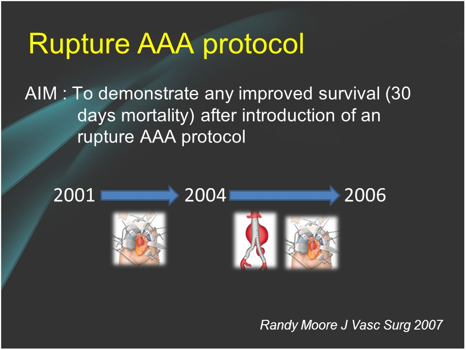 Rupture AAA protocol AIM : To demonstrate any improved survival (30 days mortality) after introduction of an rupture AAA protocol.