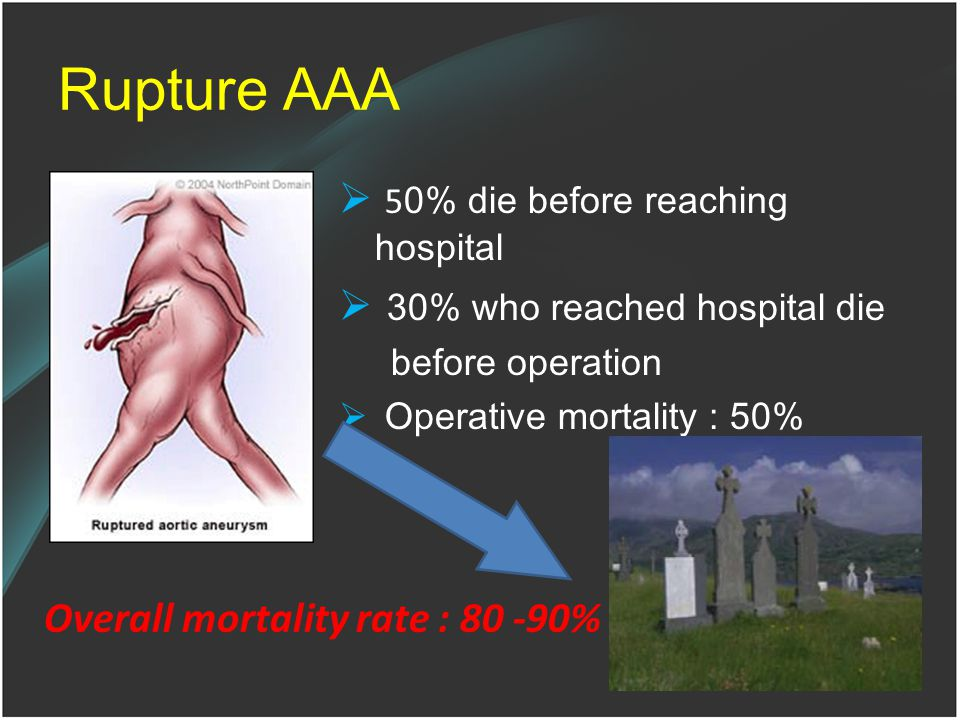 Rupture AAA 50% die before reaching hospital