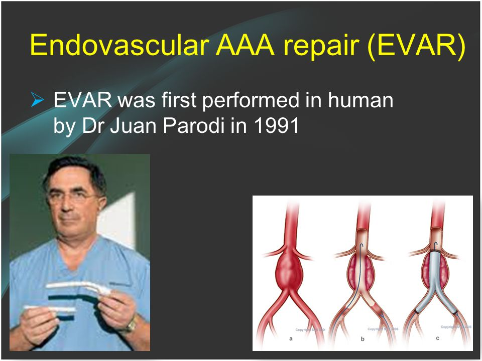 Endovascular AAA repair (EVAR)