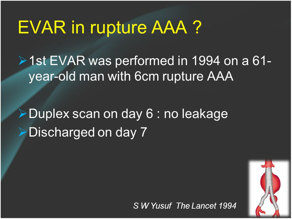 EVAR in rupture AAA 1st EVAR was performed in 1994 on a 61-year-old man with 6cm rupture AAA. Duplex scan on day 6 : no leakage.