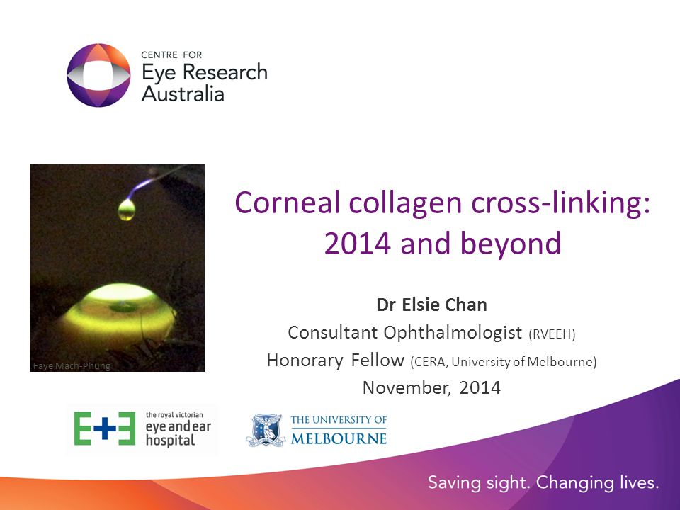 Corneal collagen cross-linking: 2014 and beyond