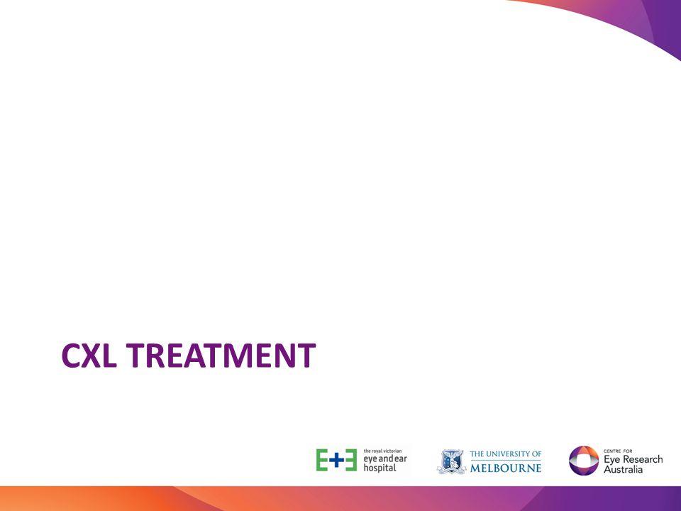 CXL treatment