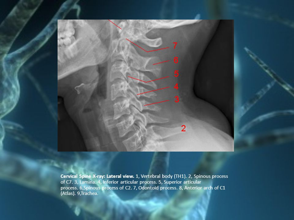 Cervical Spine X-ray: Lateral view. 1, Vertebral body (TH1)