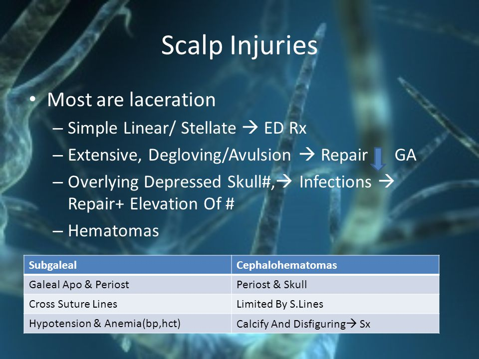 Scalp Injuries Most are laceration Simple Linear/ Stellate  ED Rx