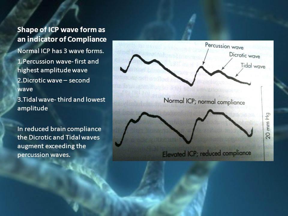 Shape of ICP wave form as an indicator of Compliance