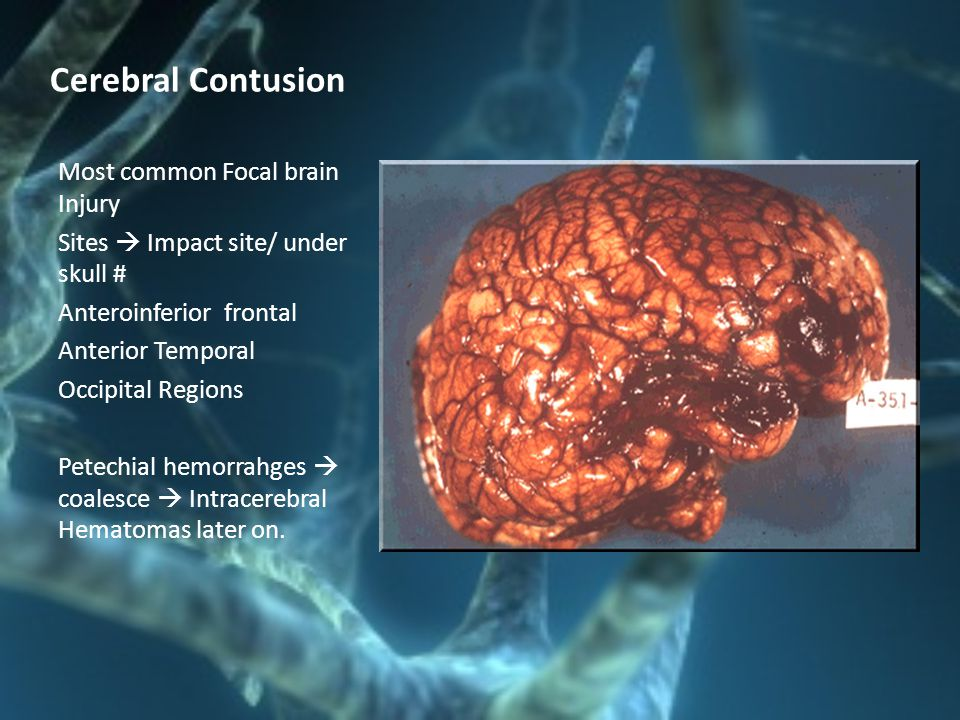 Cerebral Contusion Most common Focal brain Injury