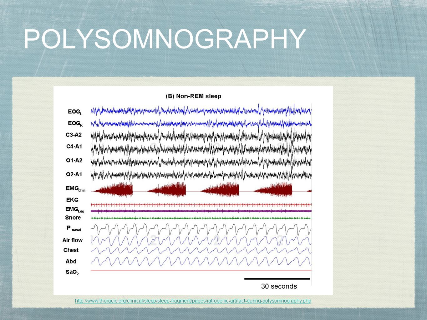POLYSOMNOGRAPHY http://www.thoracic.org/clinical/sleep/sleep-fragment/pages/iatrogenic-artifact-during-polysomnography.php.
