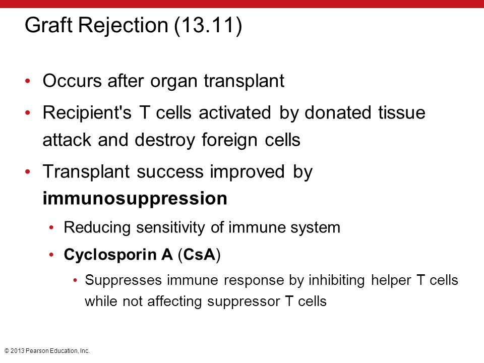 Graft Rejection (13.11) Occurs after organ transplant