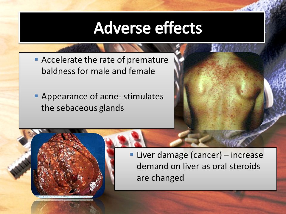 Adverse effects Accelerate the rate of premature baldness for male and female. Appearance of acne- stimulates the sebaceous glands.