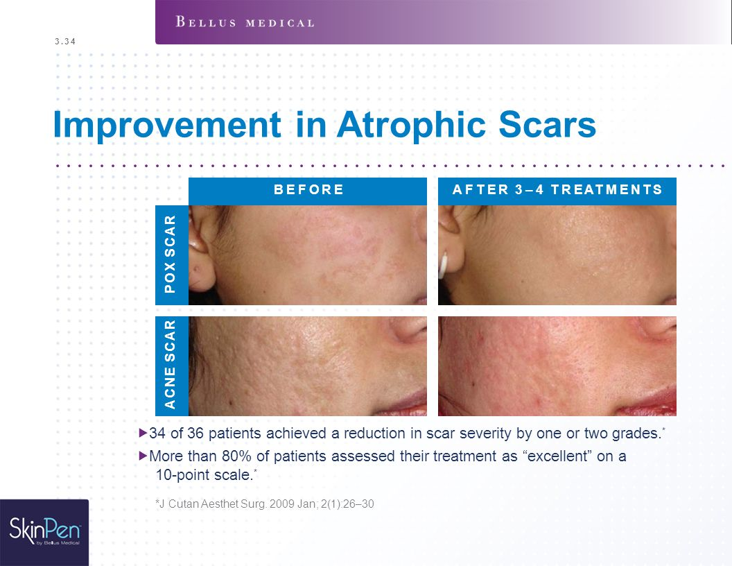 Improvement in Atrophic Scars