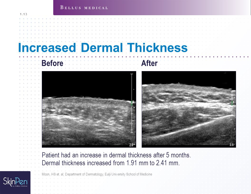 Increased Dermal Thickness
